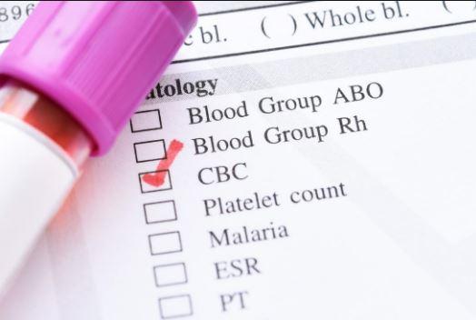 ספירת-דם-complete-bloob-count-hemogramme-общий-клинический-анализ