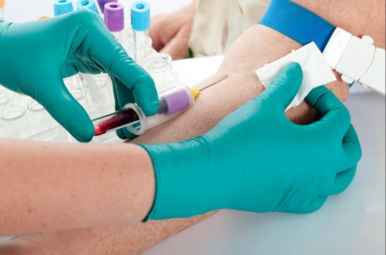 ביצוע בדיקות דם / מעבדה בבית